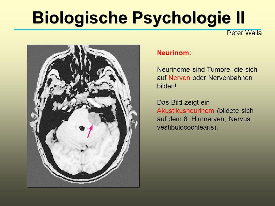 Biologische Psychologie II Peter Walla Neurinom: Neurinome sind Tumore, die sich auf Nerven oder Nervenbahnen bilden! Das Bild zeigt ein Akustikusneur