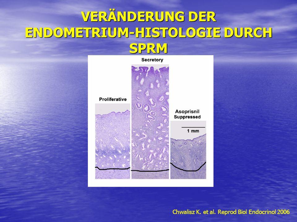 VERÄNDERUNG DER ENDOMETRIUM-HISTOLOGIE DURCH SPRM Chwalisz K. et al. Reprod Biol Endocrinol 2006