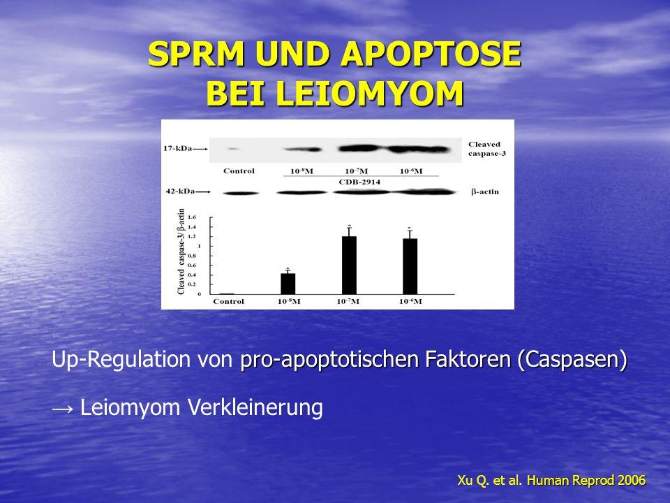SPRM UND APOPTOSE BEI LEIOMYOM Human Reprod 2006 Xu Q. et al. Human Reprod 2006 pro-apoptotischen Faktoren (Caspasen) Up-Regulation von pro-apoptotisc