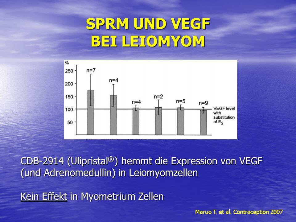 SPRM UND VEGF BEI LEIOMYOM Maruo T. et al. Contraception 2007 CDB-2914 (Ulipristal ® ) hemmt die Expression von VEGF (und Adrenomedullin) in Leiomyomz