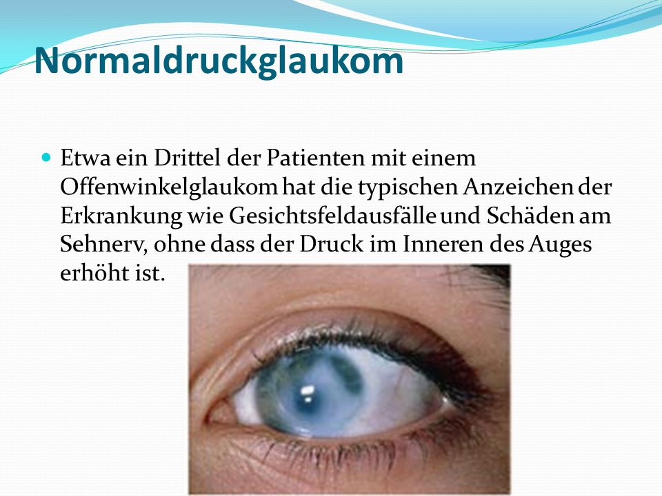 Normaldruckglaukom Etwa ein Drittel der Patienten mit einem Offenwinkelglaukom hat die typischen Anzeichen der Erkrankung wie Gesichtsfeldausfälle und Schäden am Sehnerv, ohne dass der Druck im Inneren des Auges erhöht ist.
