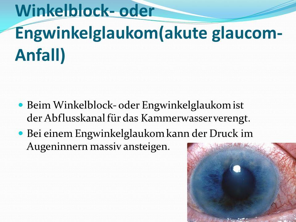 Winkelblock- oder Engwinkelglaukom(akute glaucom- Anfall) Beim Winkelblock- oder Engwinkelglaukom ist der Abflusskanal für das Kammerwasser verengt.