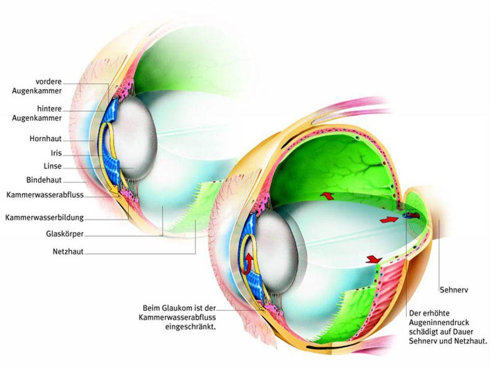 Behandlung der verschiedenen Glaukom-Arten Medikamente; Operation;