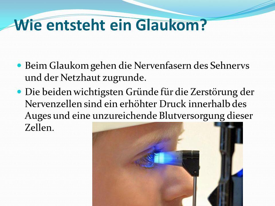 Wie entsteht ein Glaukom.