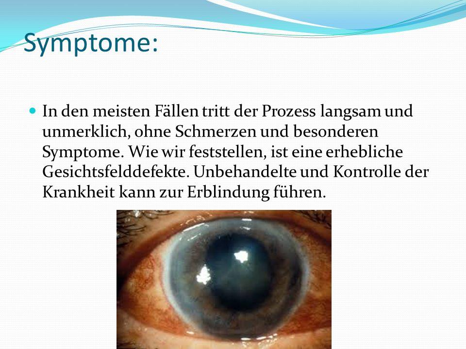 Symptome: In den meisten Fällen tritt der Prozess langsam und unmerklich, ohne Schmerzen und besonderen Symptome.