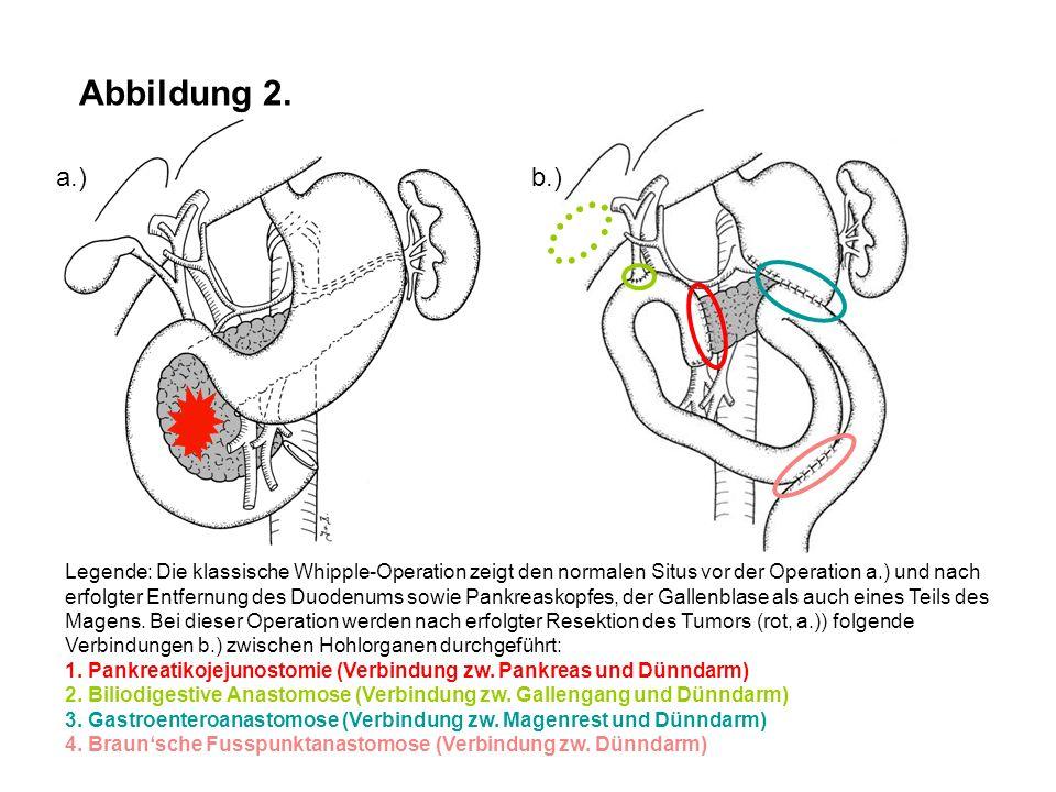 Abbildung 2. Legende: Die klassische Whipple-Operation zeigt den normalen Situs vor der Operation a.) und nach erfolgter Entfernung des Duodenums sowi