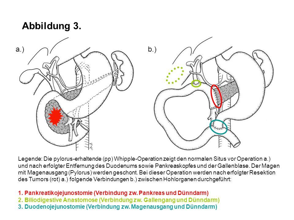 Abbildung 3. Legende: Die pylorus-erhaltende (pp) Whipple-Operation zeigt den normalen Situs vor Operation a.) und nach erfolgter Entfernung des Duode