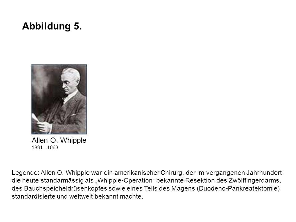 Abbildung 5. Legende: Allen O. Whipple war ein amerikanischer Chirurg, der im vergangenen Jahrhundert die heute standarmässig als Whipple-Operation be