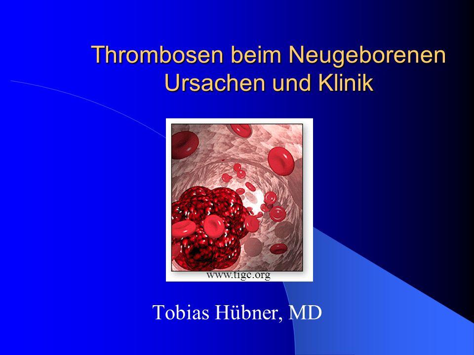 32 Thrombosen bei FG/NG – Thrombolyse III Monitoring der Thrombolysetherapie Bildgebung alle 4-12 Stunden, um Therapie nach Lyse zu beenden Thrombinzeit, Fibrinogen, Plasminogen und D-Dimere vor Beginn, nach 3-4h sowie 1-3x/d im Verlauf Fibrinolytische Antwort durch Abfall der Fibrinogenkonzentration und Anstieg der Spaltprodukte gemessen Fibrinogen sollte > 100 mg/dl bleiben, um Blutungen zu vermeiden