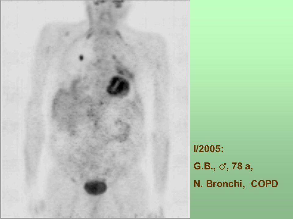 I/2005: G.B.,, 78 a, N. Bronchi, COPD