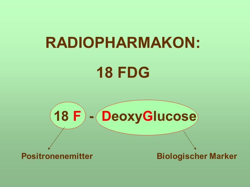 RADIOPHARMAKON: 18 FDG 18 F - DeoxyGlucose PositronenemitterBiologischer Marker