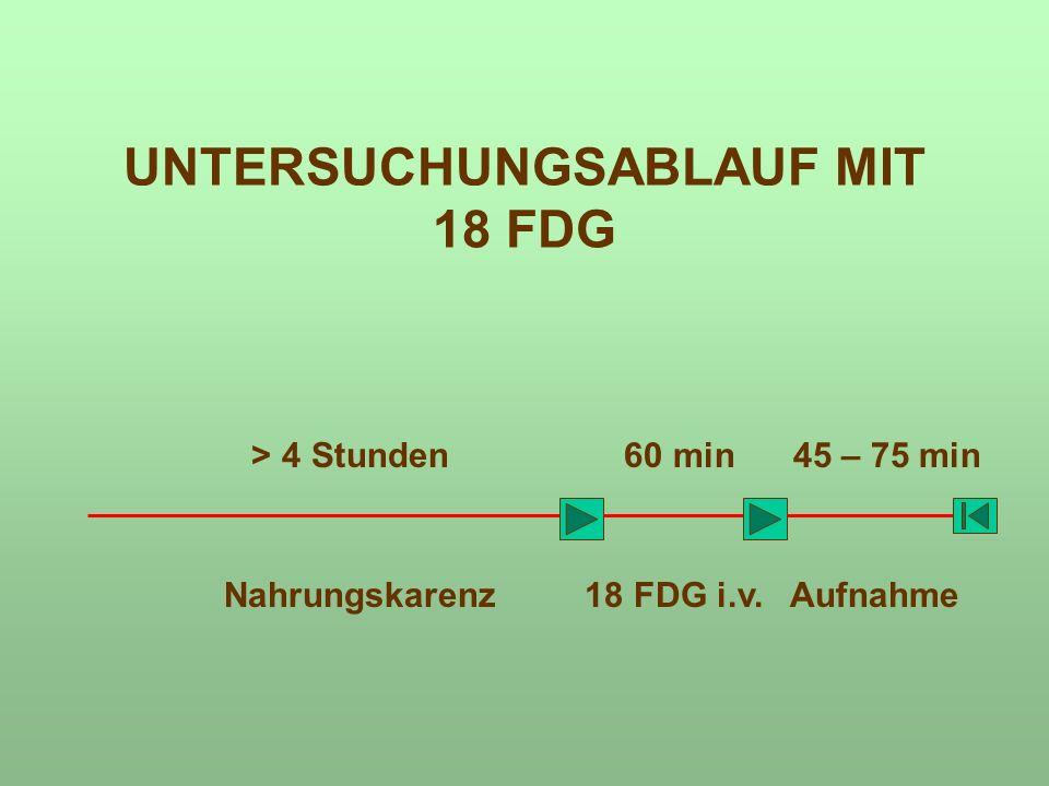 UNTERSUCHUNGSABLAUF MIT 18 FDG > 4 Stunden 60 min 45 – 75 min Nahrungskarenz 18 FDG i.v. Aufnahme