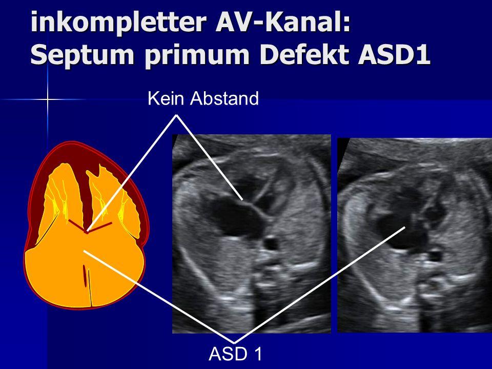 inkompletter AV-Kanal: Septum primum Defekt ASD1 Kein Abstand ASD 1