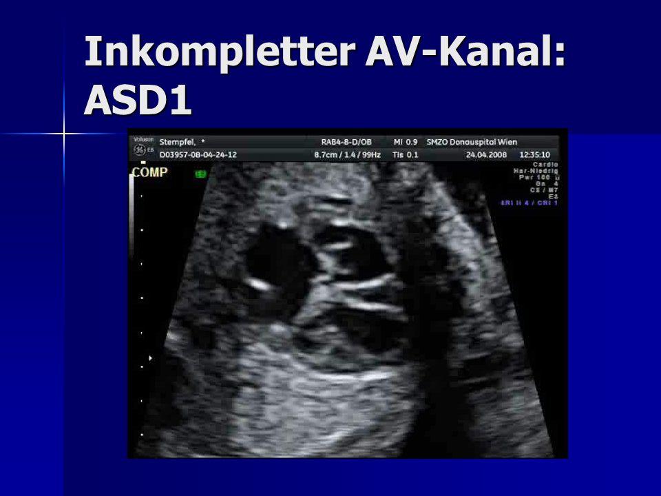 Inkompletter AV-Kanal: ASD1