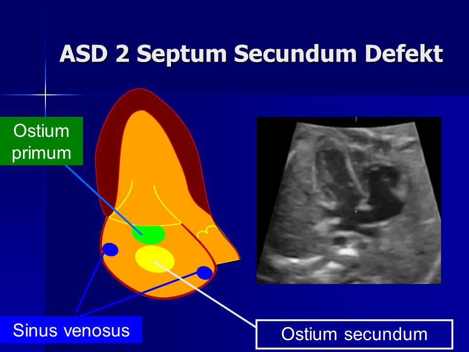 ASD 2 Septum Secundum Defekt Sinus venosus Ostium primum Ostium secundum