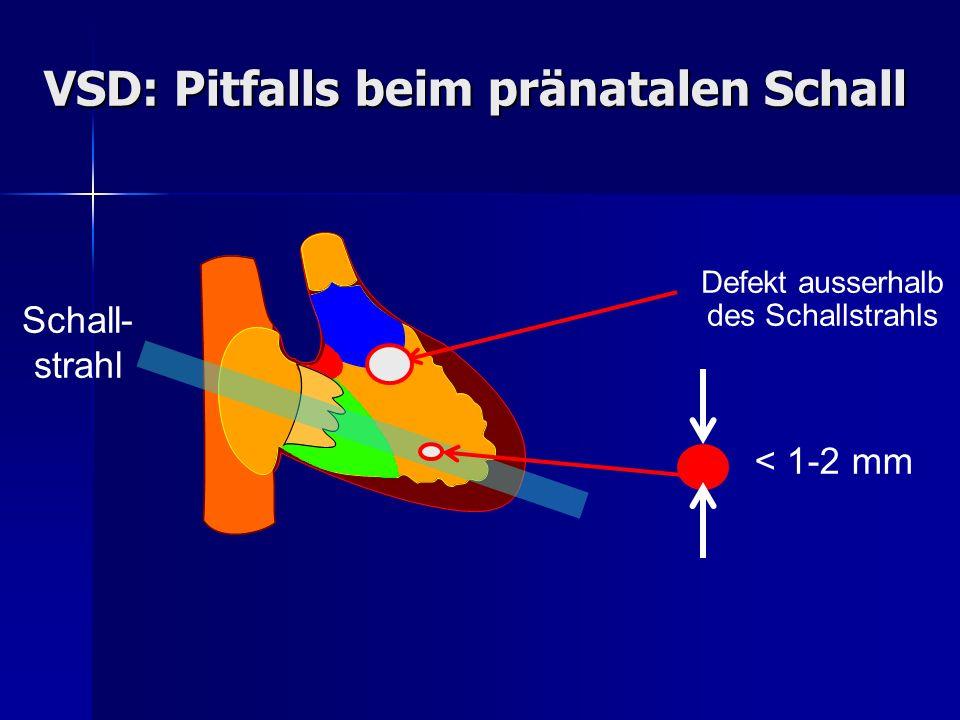 Defekt ausserhalb des Schallstrahls < 1-2 mm VSD: Pitfalls beim pränatalen Schall Schall- strahl