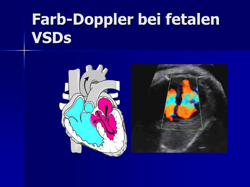 Farb-Doppler bei fetalen VSDs
