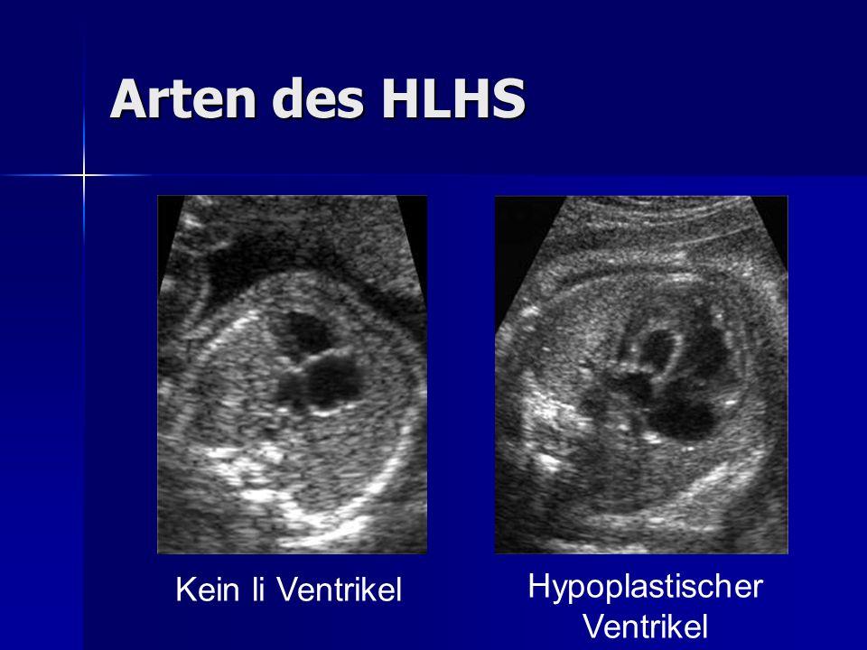 Arten des HLHS Kein li Ventrikel Hypoplastischer Ventrikel