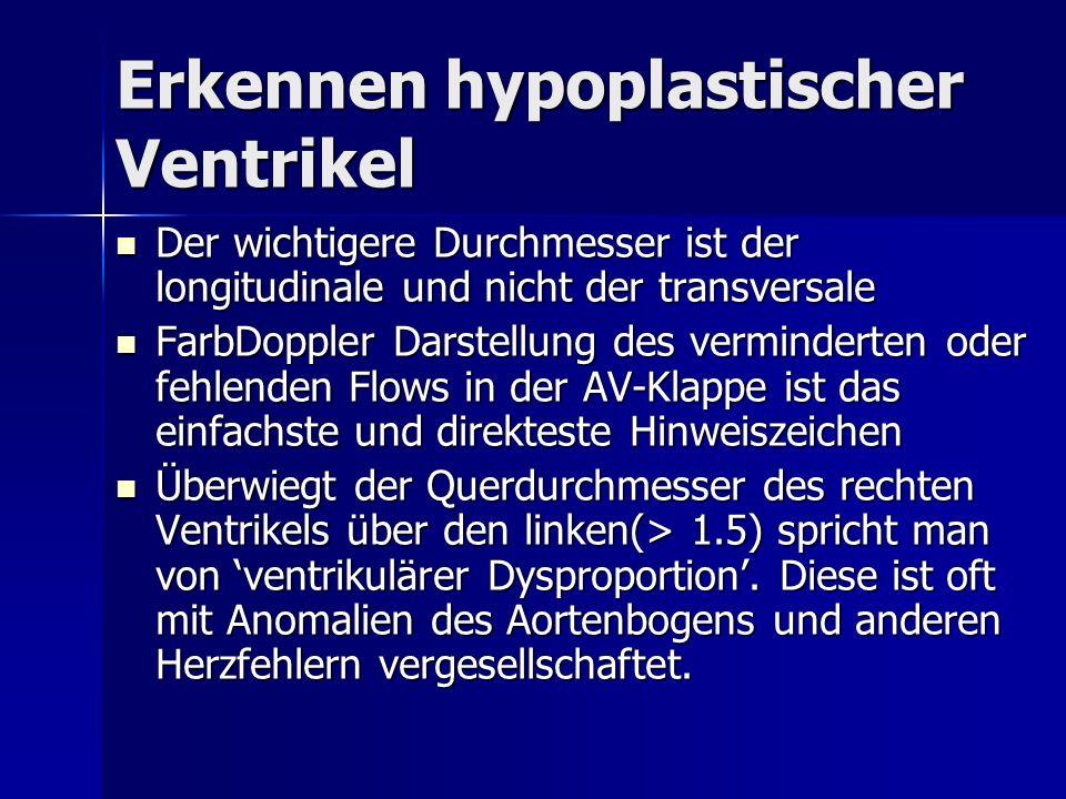 Erkennen hypoplastischer Ventrikel Der wichtigere Durchmesser ist der longitudinale und nicht der transversale Der wichtigere Durchmesser ist der long