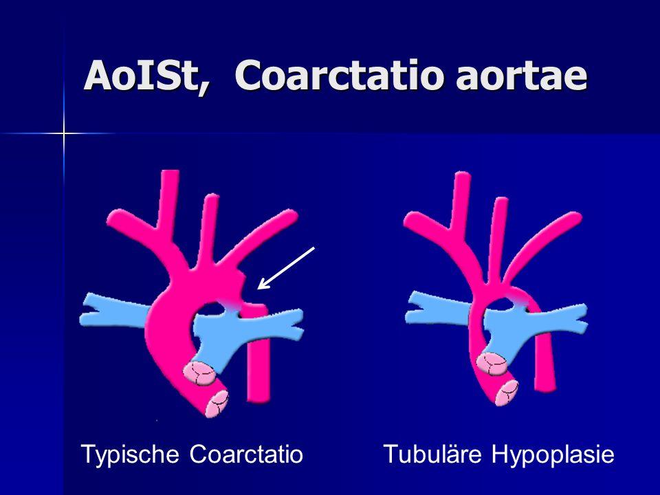 AoISt, Coarctatio aortae Typische CoarctatioTubuläre Hypoplasie