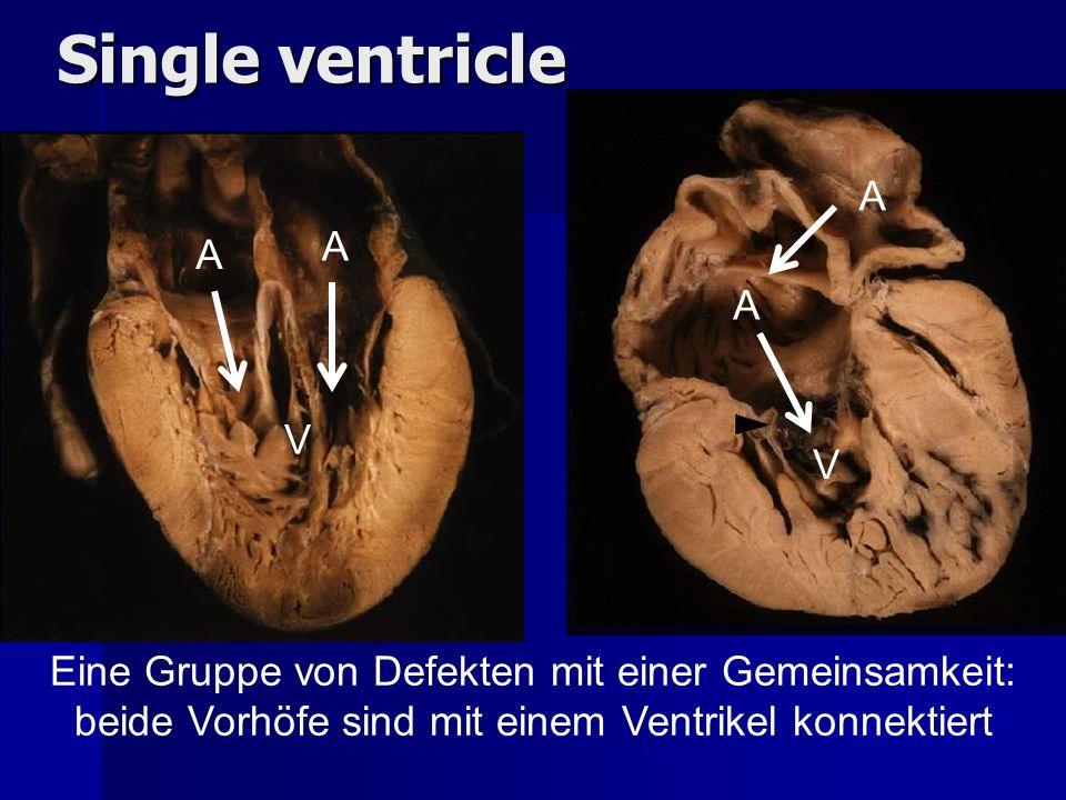 A A A A V V Single ventricle Eine Gruppe von Defekten mit einer Gemeinsamkeit: beide Vorhöfe sind mit einem Ventrikel konnektiert
