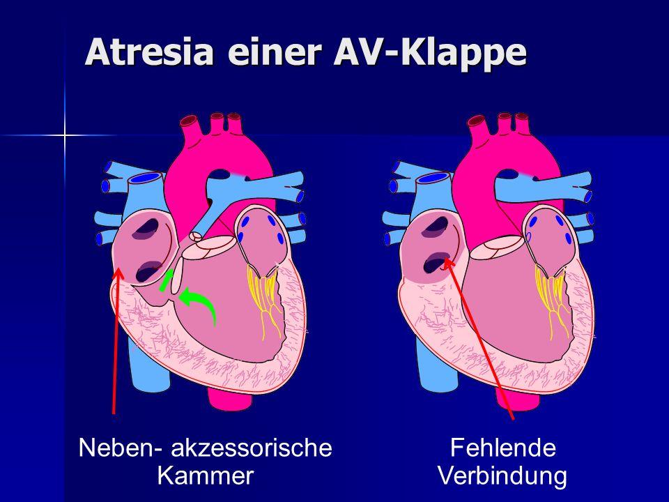 Neben- akzessorische Kammer Fehlende Verbindung Atresia einer AV-Klappe