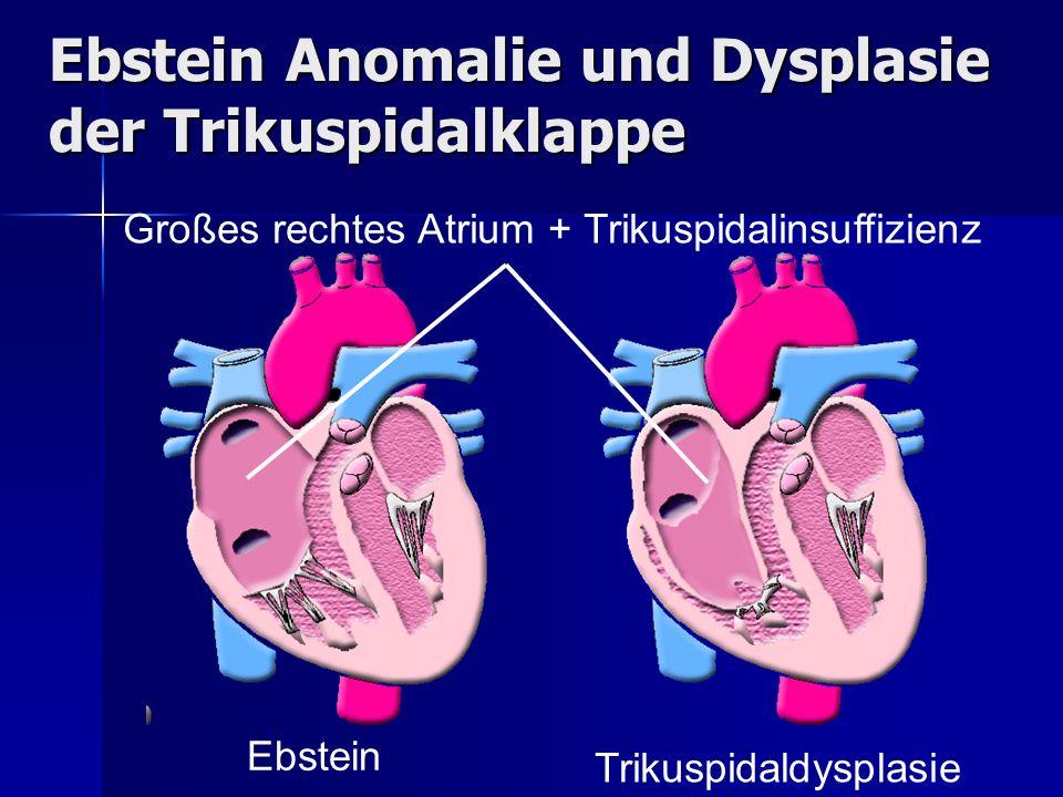 Ebstein Anomalie und Dysplasie der Trikuspidalklappe Ebstein Trikuspidaldysplasie Großes rechtes Atrium + Trikuspidalinsuffizienz