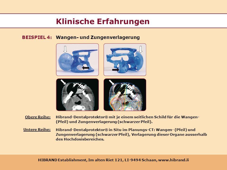 HIBRAND Establishment, Im alten Riet 121, LI-9494 Schaan, www.hibrand.li Klinische Erfahrungen Wangen- und ZungenverlagerungBEISPIEL 4: Hibrand-Dental