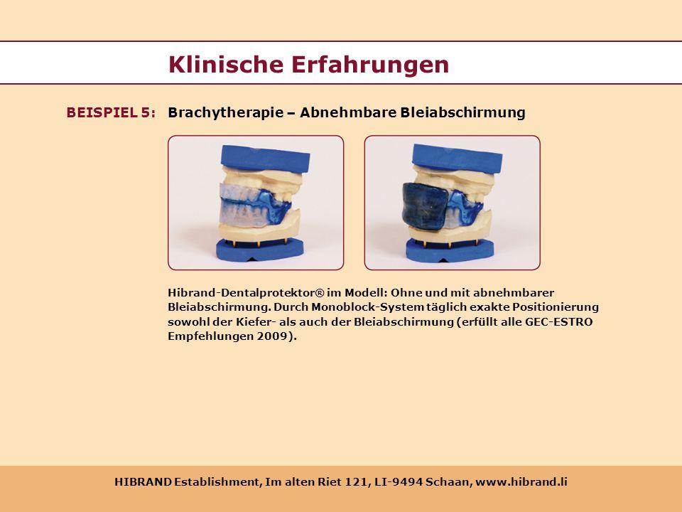 HIBRAND Establishment, Im alten Riet 121, LI-9494 Schaan, www.hibrand.li Klinische Erfahrungen Brachytherapie – Abnehmbare BleiabschirmungBEISPIEL 5: