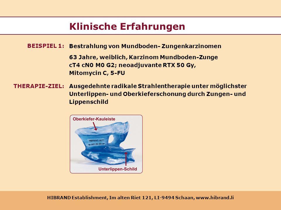HIBRAND Establishment, Im alten Riet 121, LI-9494 Schaan, www.hibrand.li Klinische Erfahrungen 63 Jahre, weiblich, Karzinom Mundboden-Zunge cT4 cN0 M0
