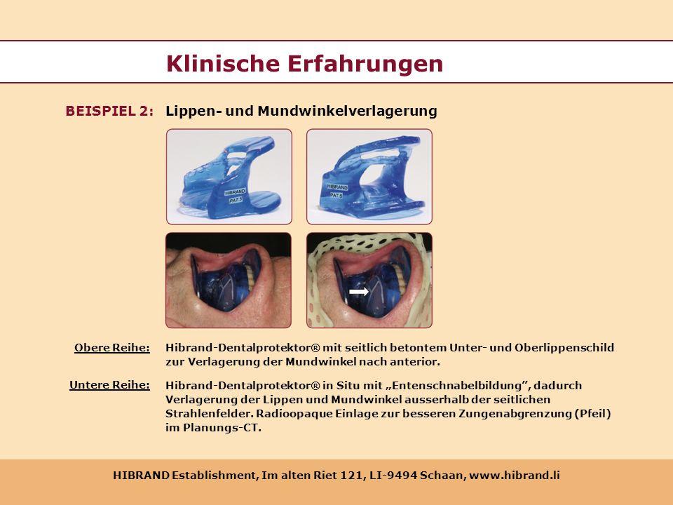 HIBRAND Establishment, Im alten Riet 121, LI-9494 Schaan, www.hibrand.li Klinische Erfahrungen Lippen- und MundwinkelverlagerungBEISPIEL 2: Hibrand-De