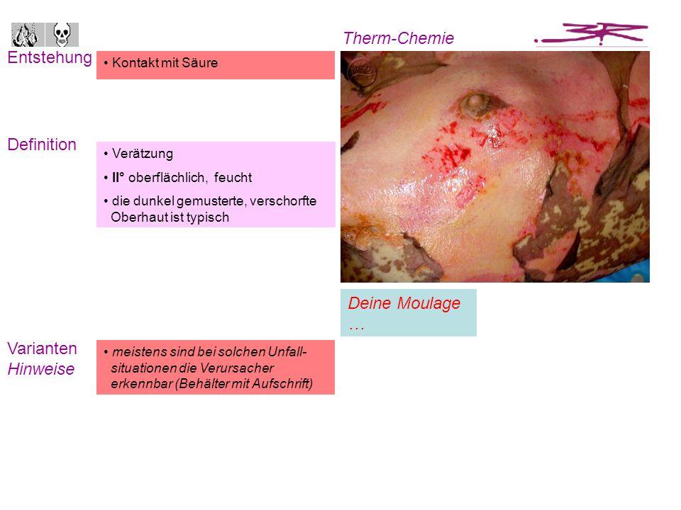 Entstehung Definition Therm-Chemie Varianten Hinweise Kontakt mit Schwefelsäure Eintauchmuster I°, rot, trocken II°, rot, feucht/trocken, mit Blasenbildung III°, trocken, mit Gewebeschädigung Begleitverletzungen -schäden können wahrscheinlich sein Verätzung II° tief, III° trocken die Schnitte sind bereits vom Chirurgen zur Entspannung der Haut getätigt worden Sie gehören nicht zum Verletzungsbild Deine Moulage …