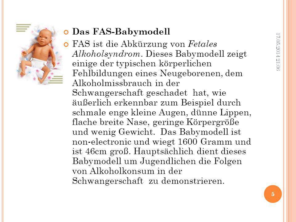 Das FAS-Babymodell FAS ist die Abkürzung von Fetales Alkoholsyndrom. Dieses Babymodell zeigt einige der typischen körperlichen Fehlbildungen eines Neu
