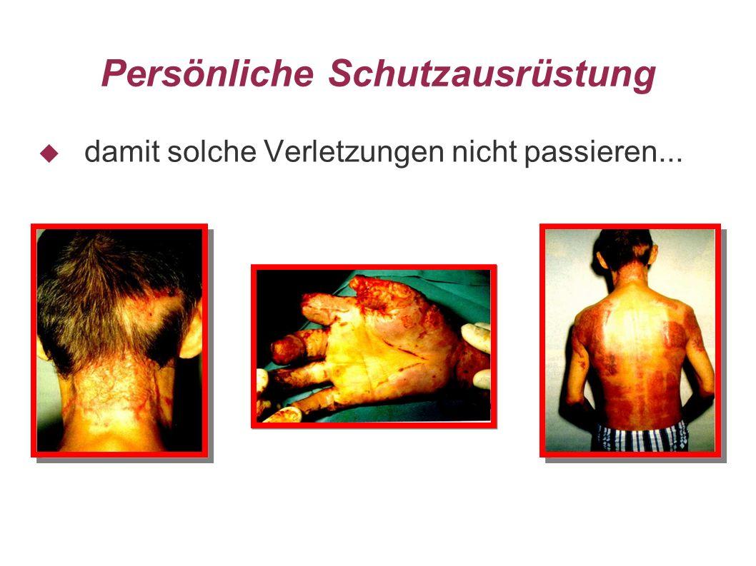 Persönliche Schutzausrüstung damit solche Verletzungen nicht passieren...