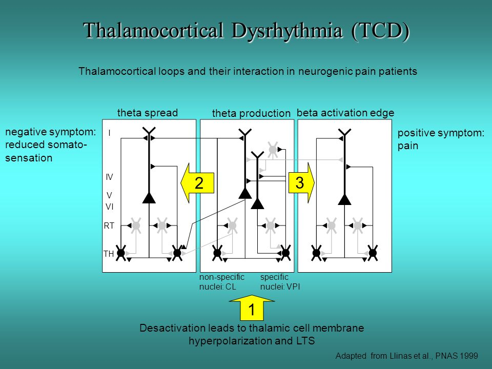 Thalamocortical Dysrhythmia (TCD) Thalamocortical loops and their interaction in neurogenic pain patients non-specific nuclei: CL specific nuclei: VPI Desactivation leads to thalamic cell membrane hyperpolarization and LTS 1 theta spread negative symptom: reduced somato- sensation 2 beta activation edge positive symptom: pain 3 TH RT I IV V VI Adapted from Llinas et al., PNAS 1999 theta production