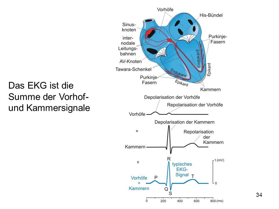 34 Das EKG ist die Summe der Vorhof- und Kammersignale