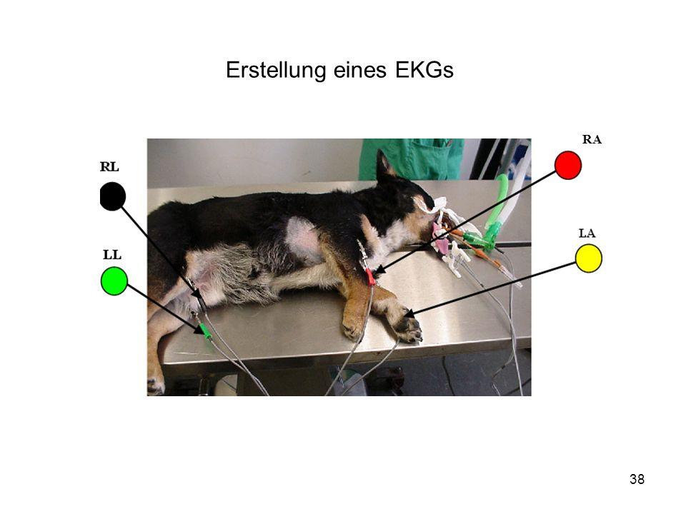 38 RA Erstellung eines EKGs