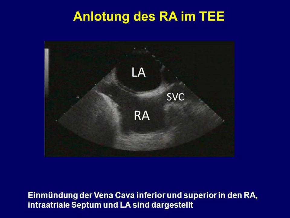 Anlotung des RA im TEE Einmündung der Vena Cava inferior und superior in den RA, intraatriale Septum und LA sind dargestellt