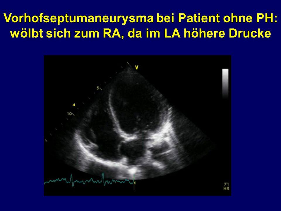 Vorhofseptumaneurysma bei Patient ohne PH: wölbt sich zum RA, da im LA höhere Drucke