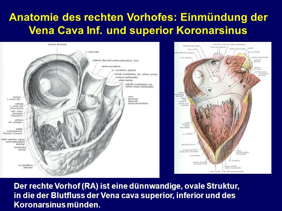 Anatomie des rechten Vorhofes: Einmündung der Vena Cava Inf.