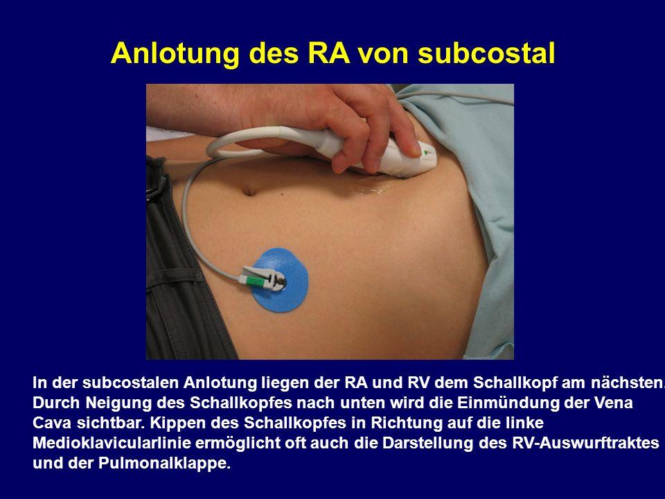 Anlotung des RA von subcostal In der subcostalen Anlotung liegen der RA und RV dem Schallkopf am nächsten.