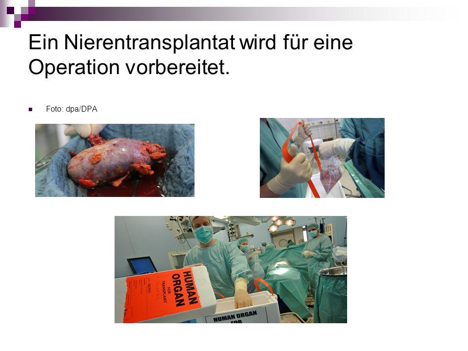Ein Nierentransplantat wird für eine Operation vorbereitet. Foto: dpa/DPA