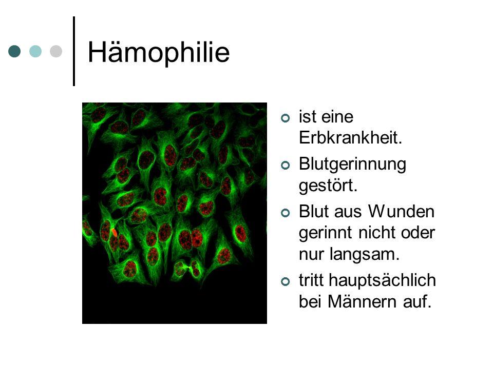 Hämophilie ist eine Erbkrankheit. Blutgerinnung gestört. Blut aus Wunden gerinnt nicht oder nur langsam. tritt hauptsächlich bei Männern auf.