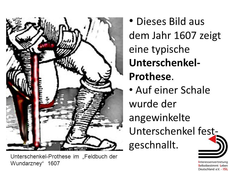 Dieses Bild aus dem Jahr 1607 zeigt eine typische Unterschenkel- Prothese. Auf einer Schale wurde der angewinkelte Unterschenkel fest- geschnallt. Unt