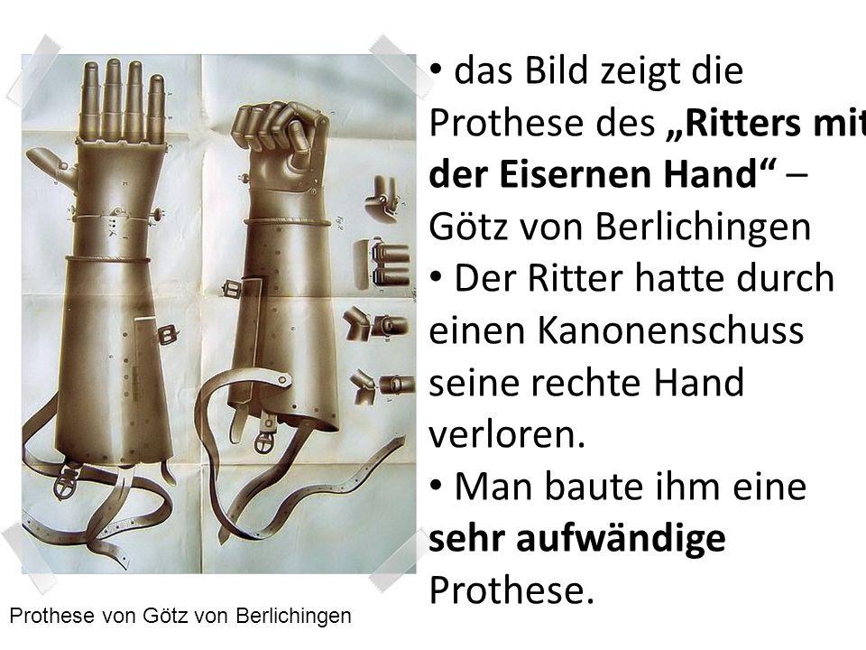 das Bild zeigt die Prothese des Ritters mit der Eisernen Hand – Götz von Berlichingen Der Ritter hatte durch einen Kanonenschuss seine rechte Hand ver