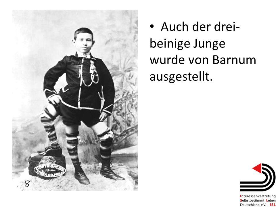 Auch der drei- beinige Junge wurde von Barnum ausgestellt.