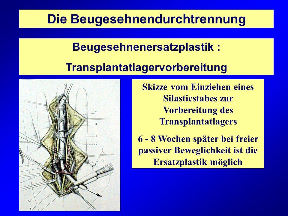 Die Beugesehnendurchtrennung Beugesehnenersatzplastik : Transplantatlagervorbereitung Skizze vom Einziehen eines Silasticstabes zur Vorbereitung des T