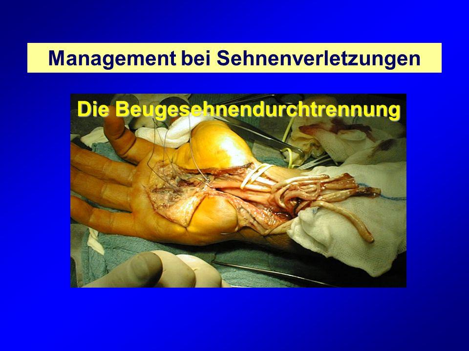 Beugesehnenverletzungen bedürfen einer differenzierten Diagnostik und einer sorgfältigen operativen Therapie, da davon ganz entscheidend die Handfunktion abhängt.
