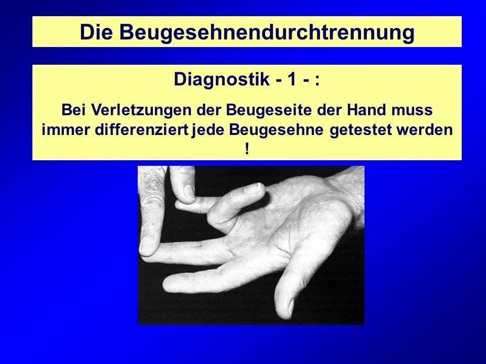 Die Beugesehnendurchtrennung Diagnostik - 2 - : Durch die örtliche Nähe zu den Gefäß-Nervenbündeln muss auch eine Verletzung dieser Strukturen ausgeschlossen werden !
