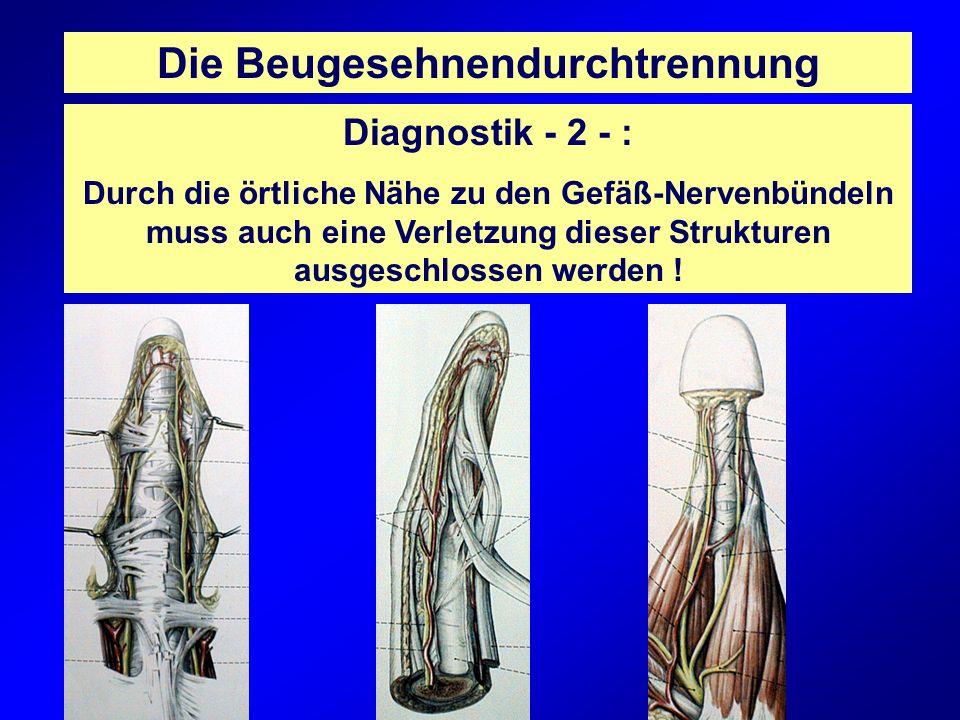 Die Beugesehnendurchtrennung Diagnostik - 2 - : Durch die örtliche Nähe zu den Gefäß-Nervenbündeln muss auch eine Verletzung dieser Strukturen ausgesc